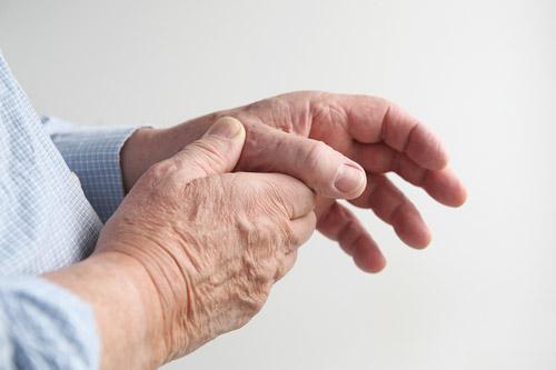 artritis-kako-ga-omiliti-na-naraven-nacin-IoxmfkfSWo